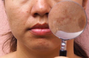 Acne Treatment Melbourne | Best Acne Scarring Melbourne
