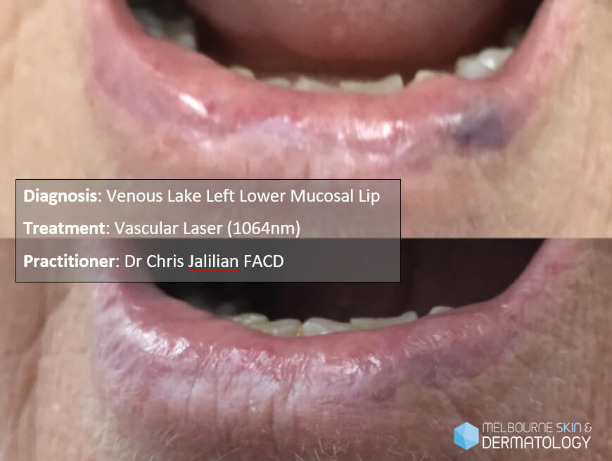 Venous Lake Lower Lip Before & After Web Use