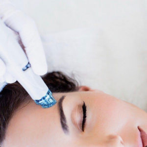HydraFacial treatment procedure