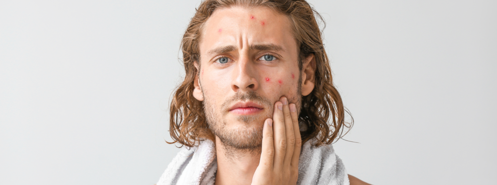 adult male acne