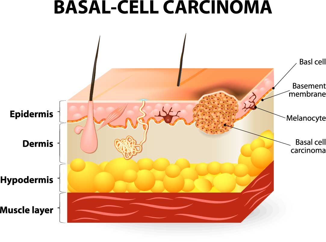 BCC cross section of skin